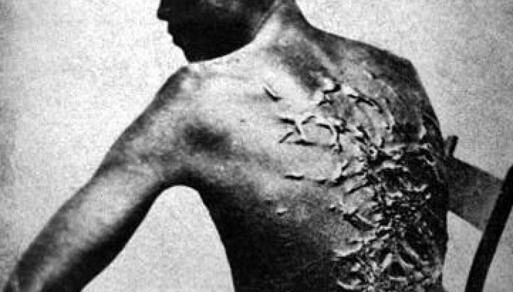 Scars on a slave who was whipped. The man in the picture was called Peter and comes from Louisiana in the US – not from the Virgin Islands. But the rules and regulations regarding slavery in the Danish West Indies show that whipping and amputation of limbs were punishments that slaves in the West Indies risked facing if they attempted escape or revolt. (Photo: National Archives and Records Administration)