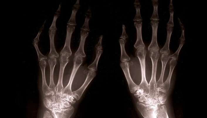 New-onset MS patients have low bone density
