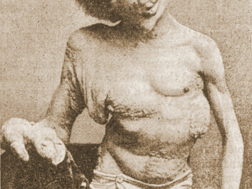 Joseph Merrick, a.k.a. the Elephant Man, photographed in 1889, a year before his death. (Photo: Wikimedia Commons, anonymous photographer)