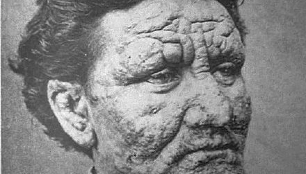 Leprosy was one of the most dreaded diseases in the Middle Ages. But the disease is still alive and kicking. The picture shows a young Norwegian man, who was infected with the disease in 1886. Now scientists have sequenced the genome of the bacterium that causes leprosy. (Photo: Wikimedia Commons)