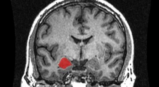 'Reptilian' brain is a penny-pincher