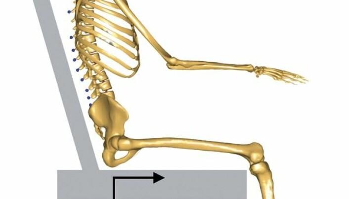 Computer model mimics mechanism behind pressure ulcers