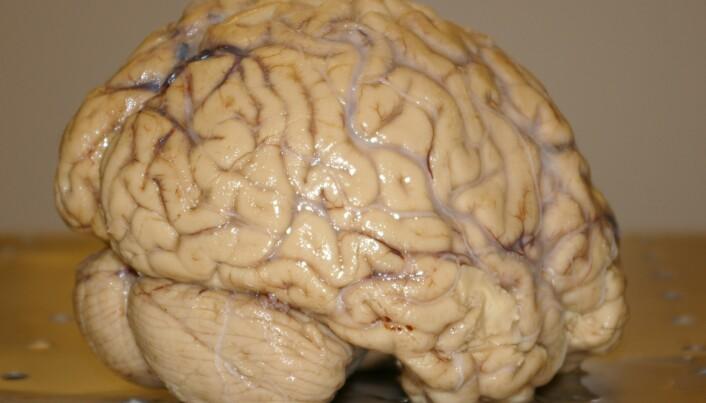 The brain's zoom button
