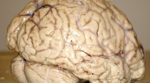 Adult memory a bellwether of the ageing brain