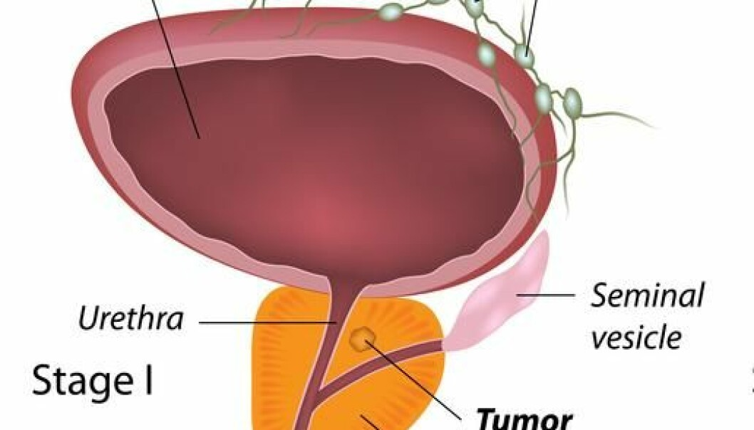 "The prostate is located around the upper part of the male urethra just below the bladder. The gland is shaped and sized like a walnut, with a diameter of around 2 cm and a weight of around 25 grams. (Photo: <a href="" http://www.shutterstock.com/"" target=""_blank"">Shutterstock</a>)"