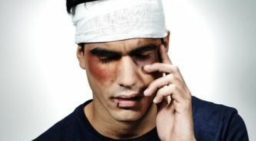 Head injury can cause mental illness