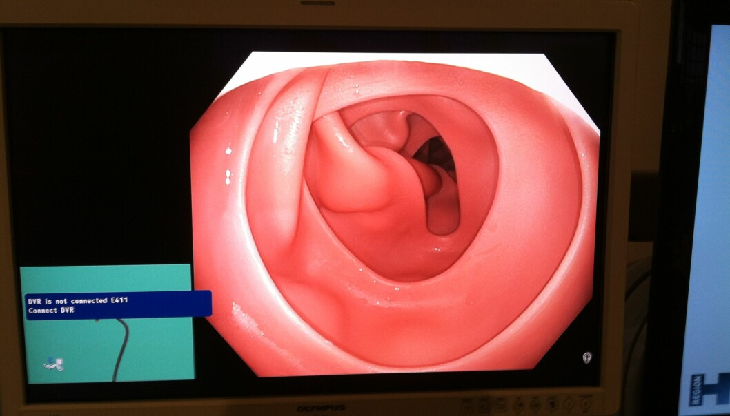 This is what the colon of a dummy looks like (Photo: Marie Brogaard)