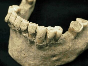 Another set of teeth from a monk. This is the lower jaw. (Photo: Christina Warinner)