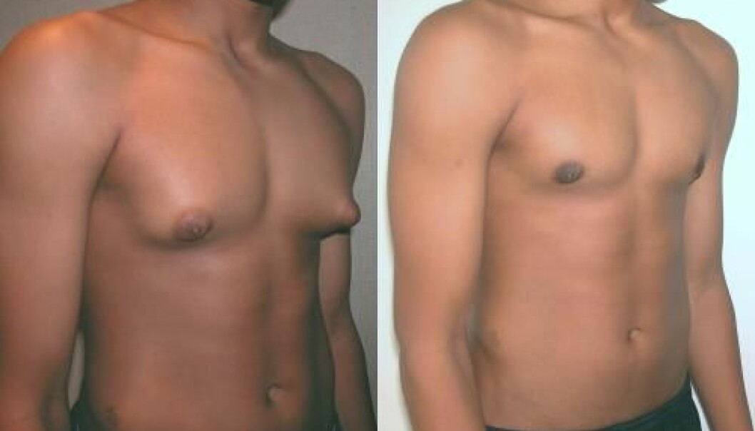A new Danish study indicates that up to 60 percent of all boys develop breasts during puberty. For the vast majority of the boys, however, the breasts disappear naturally after a while. (Photo: David Andrew Copeland, Dr Mordcai Blau)