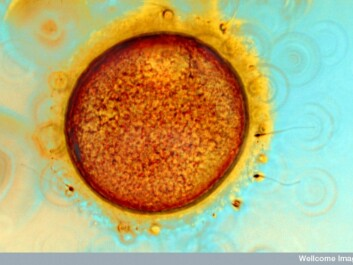 A human ovum and sperm cells during invitro fertilisation (IVF).  Small amounts of chemicals in bodily fluids open what are called CatSper, cation channels in sperm, which are necessary for successful fertilisation. (Photo: Wellcome Images)