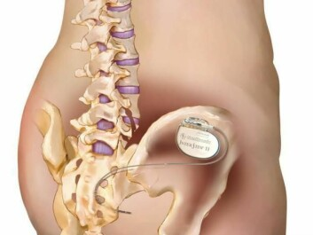 In sacral nerve stimulation therapy, a small electrical device that sends small bursts of electricity is implanted into the patient's sacral nerves. (Photo: Medtronic/Lilli Lundby )