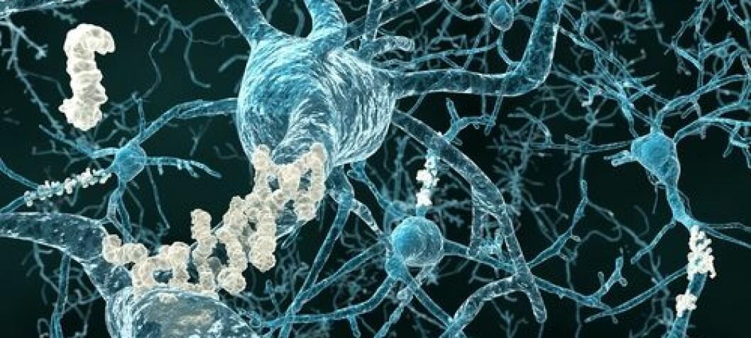 Scientists sneak Alzheimer medicine into the brain