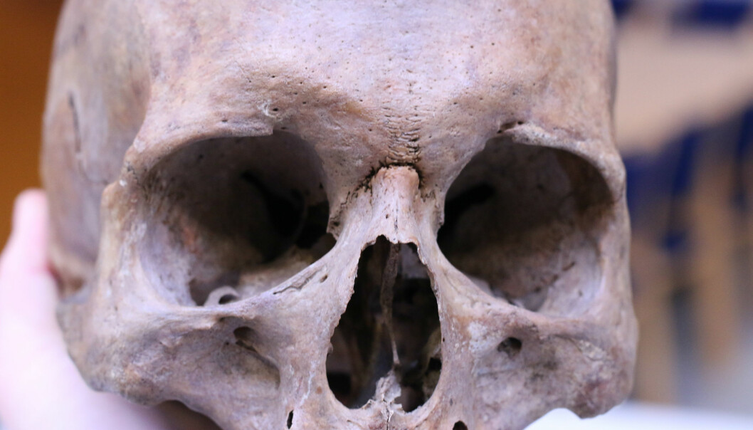 Old skulls like this one from a man who lived in the Middle Ages can tell us something about what life was like back then. (Photo: Marianne Lie Becker, University of Southern Denmark)