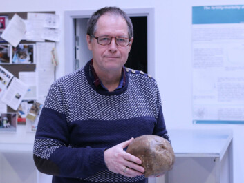 Jesper Lier Boldsen holding the skull of a man who lived with a skull fracture until it healed of its own. (Photo: Marianne Lie Becker, University of Southern Denmark)