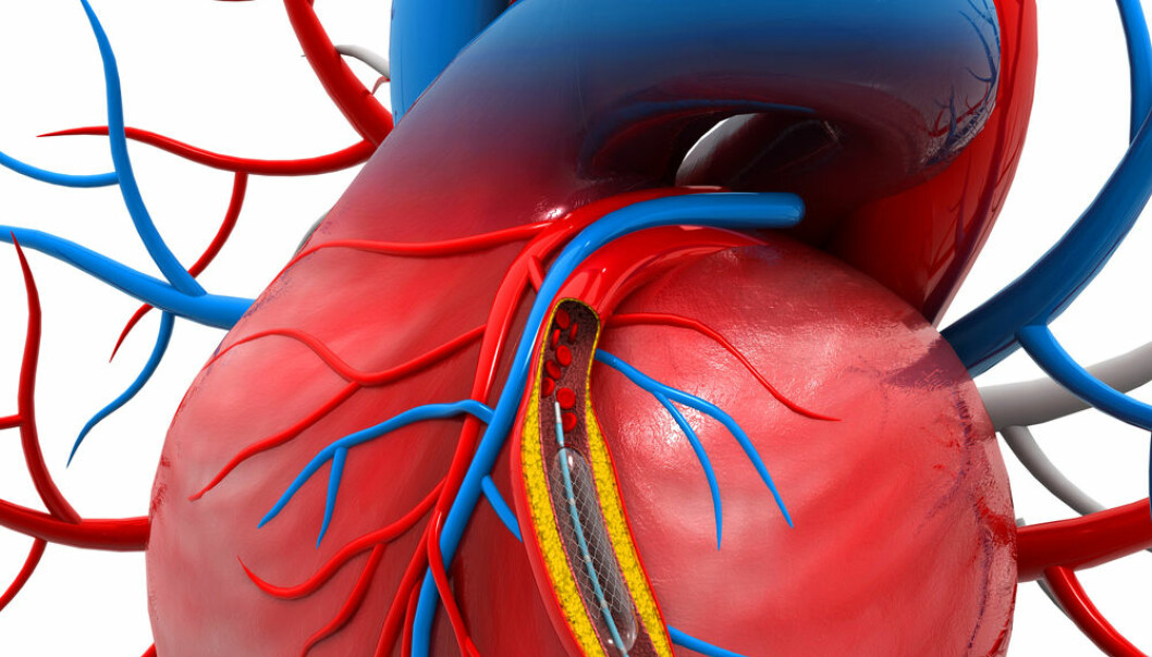 """The study showed that the subsequent risk dying, having a new coronary thrombosis or requiring angioplasty fell by 44 per cent if the patient had all blood vessel constrictions treated. (Photo: <a href=""""http://www.shutterstock.com/pic-223202266/stock-photo-stent-angioplasty-procedure-with-placing-a-balloon.html"""" target""""_Blank"""">Shutterstock</a>)"""