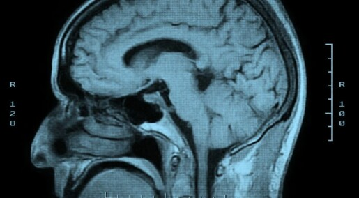 The inherent reluctance of the brain