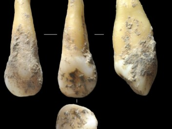 Scientists analysed DNA from ancient human teeth found at archaeological sites around Spain. These 7,400-year-old teeth were found in Vallirana, near Barcelona, and were analysed by Hannes Schroeder and his colleagues. (Photo: Joan Daura/Montserrat Sanz)