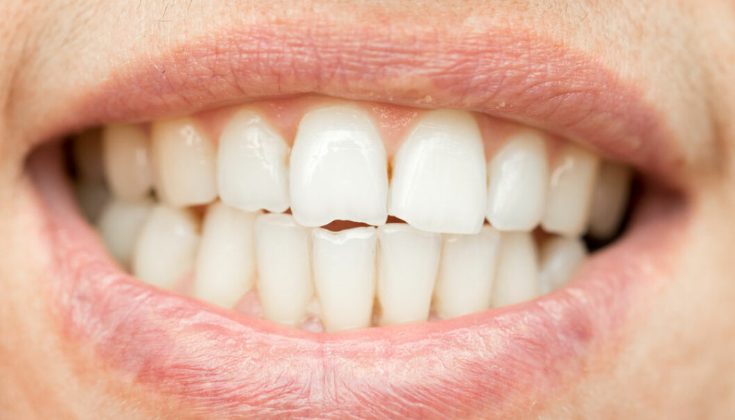 Our teeth do not produce enamel, but contain proteins that act as a scaffold for the mineral enamel. These proteins have a shared evolutionary origin with fish scales. (Photo: Shutterstock)