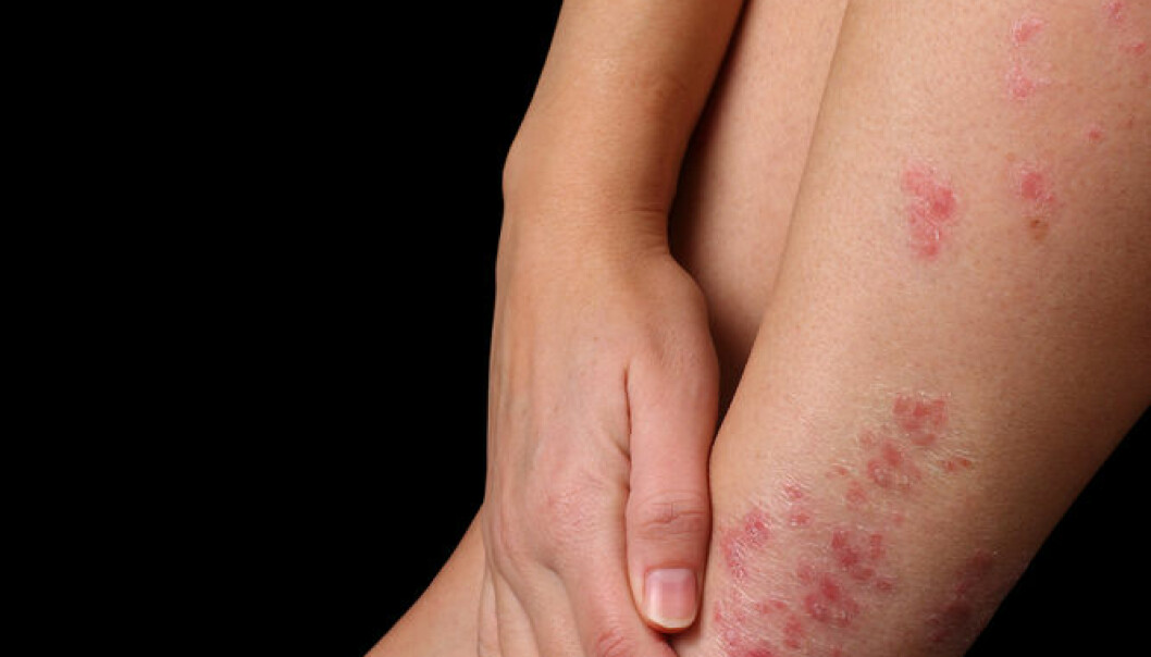 """Researchers have found that eczema and a variety of other common diseases are caused by the same genetic variants. (Photo: <a href=http://www.shutterstock.com/da/pic-70176658/stock-photo-conceptual-image-of-patient-being-embarrassed-at-having-psoriasis.html target=""""blank_"""">Shutterstock</a>)"""