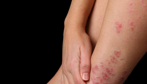 Shingles Vaccine Safe for Those With Autoimmune Diseases: Study - Consumer Health News | HealthDay