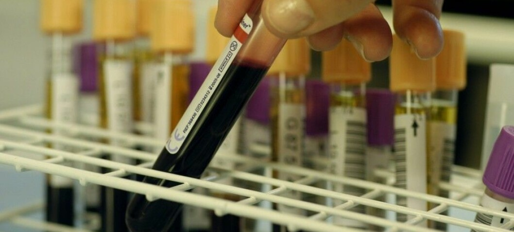 Blood sample can disclose your biological age