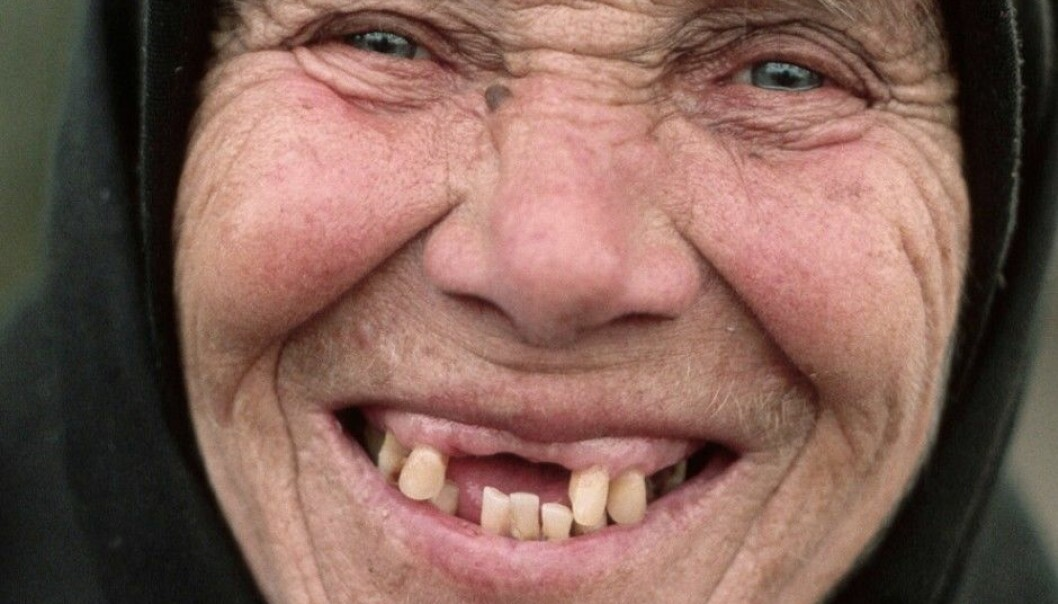 The World Health Organization has a goal that Europeans over 80 years old should have at least 20 of their own teeth. This is not true in many countries. This woman from Romania doesn't appear to meet the WHO goal, but it hasn't stopped her from smiling. (Photo: Barry Lewis, Corbis, Scanpix)