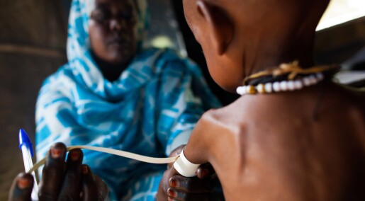 Healthy gut microbes could treat malnutrition
