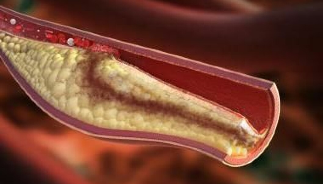"Atherosclerosis is an inflammatory condition which occurs when the cholesterol and fat adheres to the walls of arteries, hardening them. But cyclodextrin might be an effective treatment, shows new research. (Photo: <a href=http://www.shutterstock.com/da/pic-181080389/stock-photo-atherosclerotic-plaque-development-high-detail-image-of-unstable-atherosclerotic-plaque-condition.html target=""_blank"">Shutterstock</a>)"