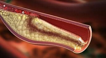 Possible breakthrough in the treatment of atherosclerosis