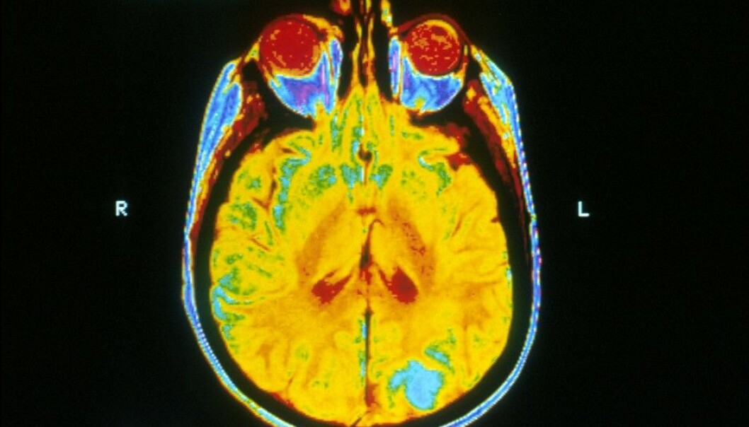 The blue regions of this magnetic resonance imaging (MRI) brain scan indicate cancer.  (Photo: National Cancer Institute/Wikimedia)