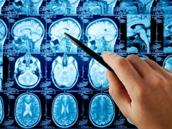 Case-control studies indicate a causal link between brain cancer and mobile phone radiation, but so far there has not been a boom in mobile-phone related cancer in the general public despite the widespread use of the technology. (Photo: Shutterstock)