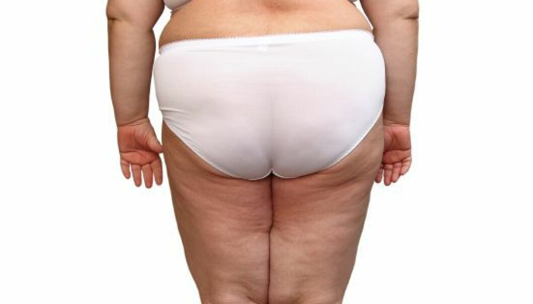 Fat on the hips and thighs is not unhealthy – it helps you live longer. (Photo: Mik122)