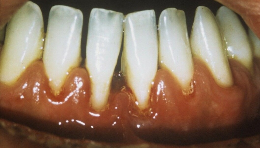 Periodontitis destroys the tissue around the teeth, both beside a tooth and beneath it. Here the deteriorated gum has pulled back, creating a gap between the teeth. (Photo: Science Photo Library)