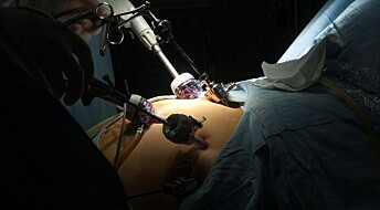 Gastric bypass surgery halved the risk of heart failure