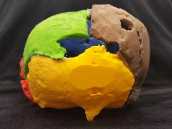 A 3D print of Gorm the Old's cranium, seen from behind. The unusual growth is illustrated in yellow. (Photo: Marie Louise Jørkov)