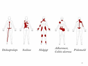 How pain looks according to one body diagram from CNAP. (Photo: Shellie A. Bourdreau)