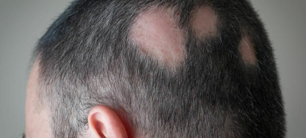 Pattern hair loss could be due to gut bacteria