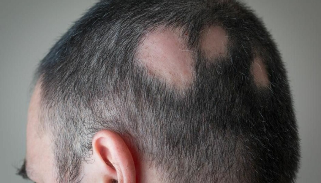 Pattern baldness (alopecia areata) affects approximately 1.7 per cent of the population and we still don't know precisely what causes it. (Photo: Shutterstock)