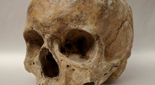 Leprosy DNA extracted from medieval skeletons in Denmark