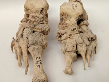 In the new study, scientists have studied DNA from bones of 69 skeletons from the Middle Ages, which were compared with DNA from 152 skeletons randomly selected from the same period. (Photo: Dorthe Pedersen)