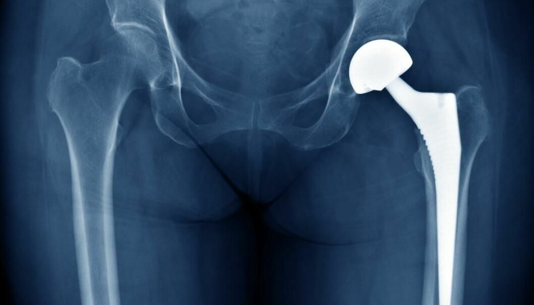 Implants become colonised by bacteria. They might even protect against infections. (Photo: Shutterstock)