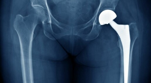 Human implants are invaded by microorganisms