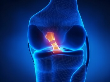 Torn anterior cruciate ligament is a common injury in sport. (Image: CLIPAREA/Shutterstock.com)