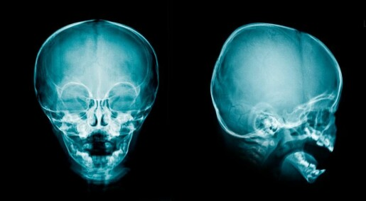 A single protein could be the key to treating hydrocephalus