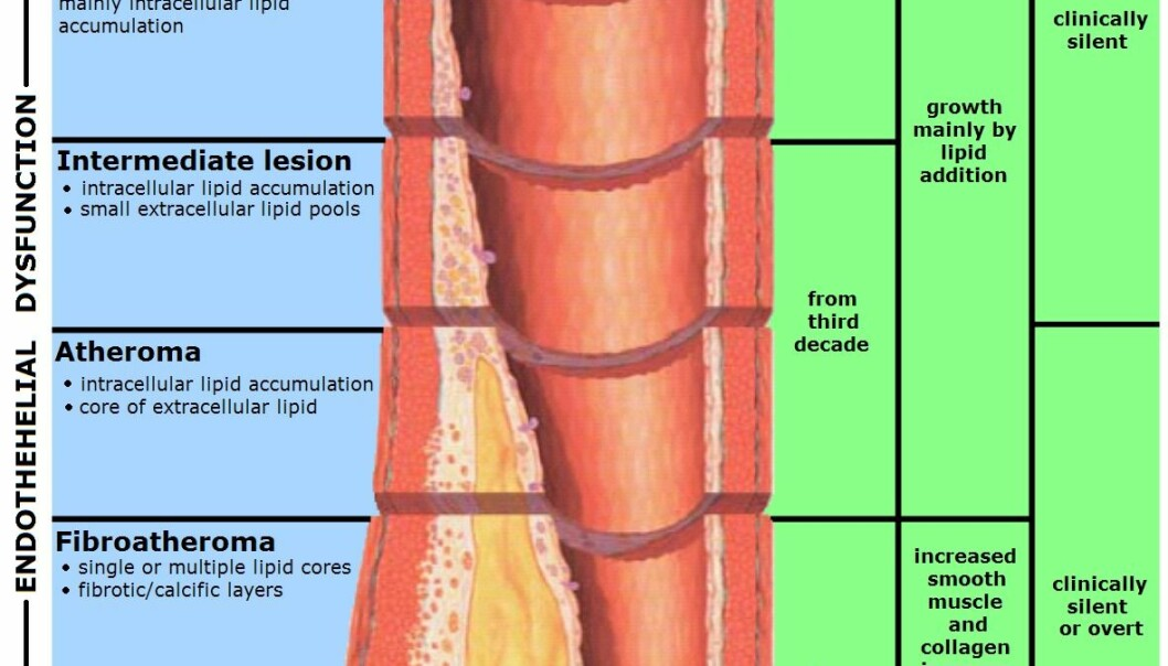 Atherosclerosis is a condition where an artery wall thickens as a result of the accumulation of fatty materials such as cholesterol (Illustration: Wikimedia Commons)