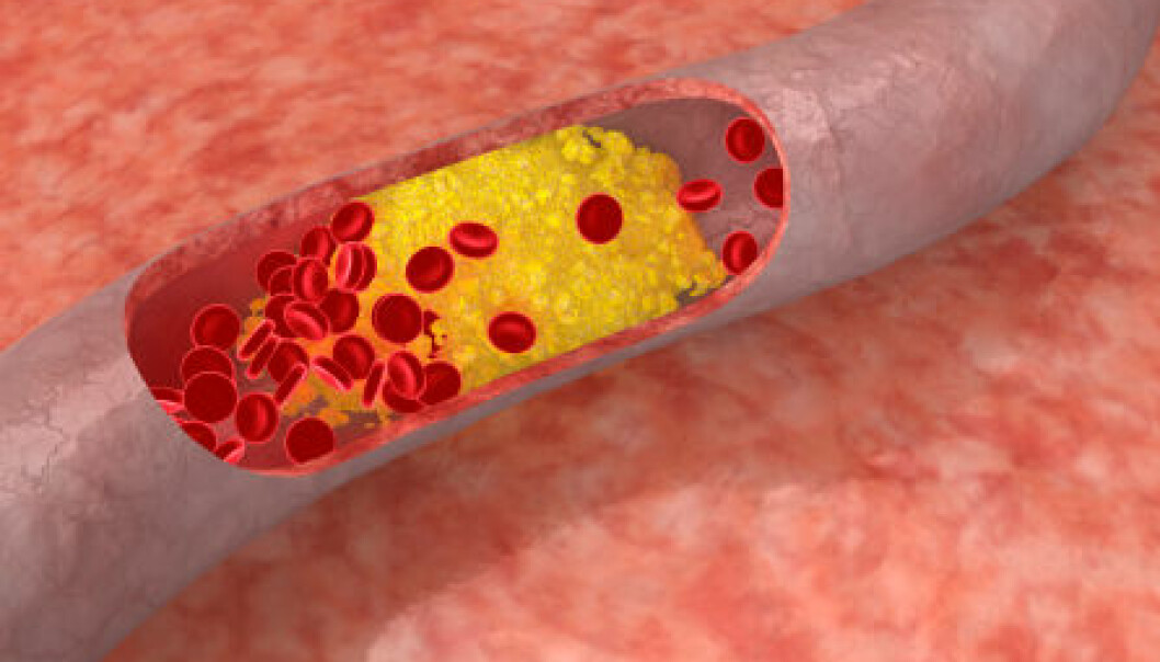 Cholesterol plaque in artery. (Photo: Istockphoto)