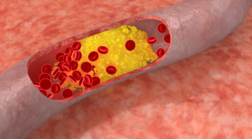 Cholesterol can be controlled